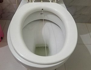 Toilet seat bidet